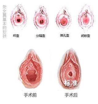 处女膜修补术价格费用 处女膜破了怎么办 广州处女膜修复哪家医院好