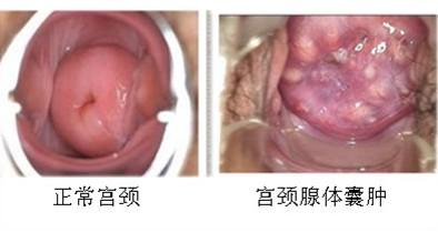 宫颈囊肿的图片是什么样的